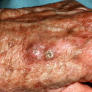 Squamous cell carcinoma.
